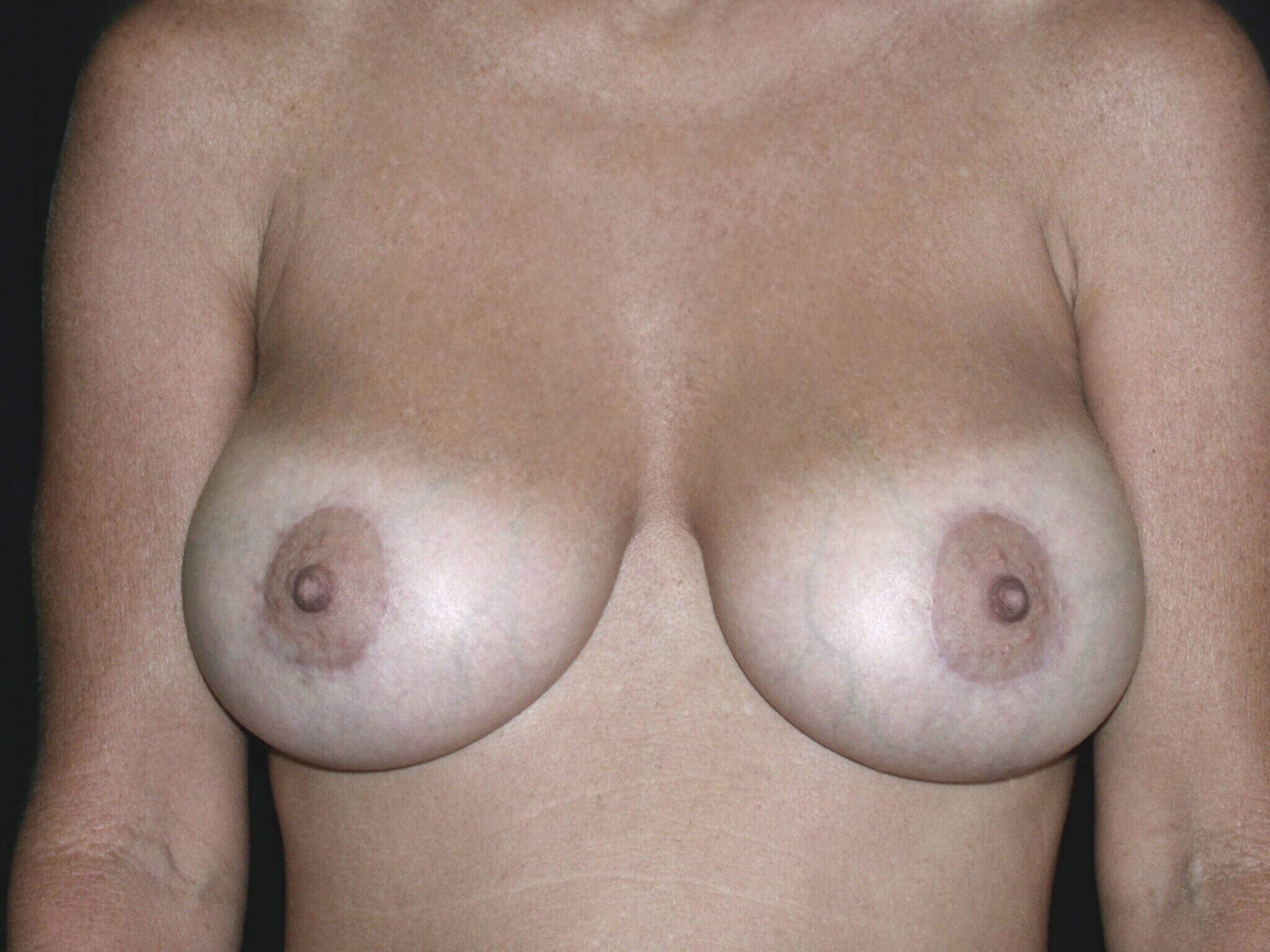 Breast Augmentation with Lift After Gummy Bear Implants