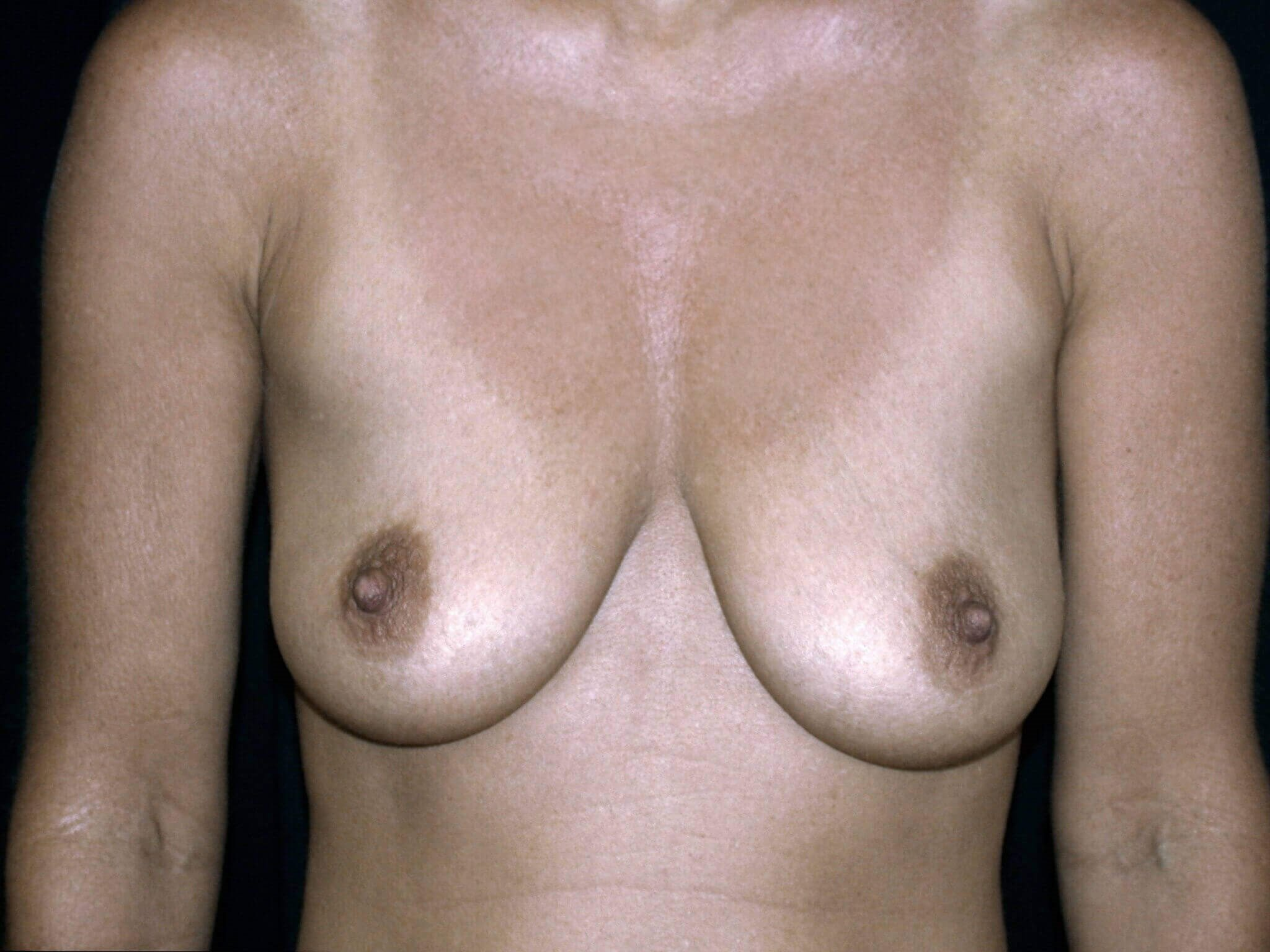 Breast Augmentation with Lift Before Gummy Bear Implants