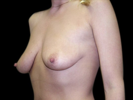 Breast Augmentation with Lift Before Breast Aug With Lift