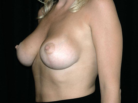 Breast Augmentation with Lift After Breast Aug With Lift