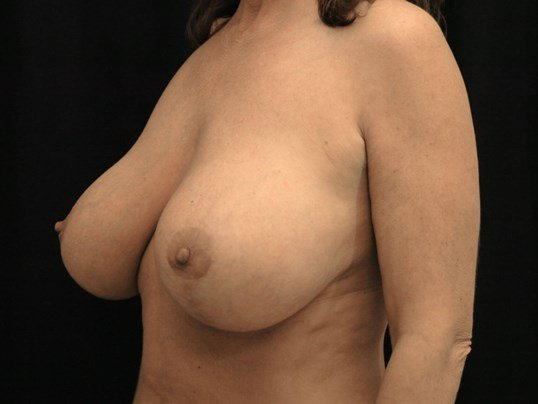 Breast Augmentation with Lift After Augmentation With Lift