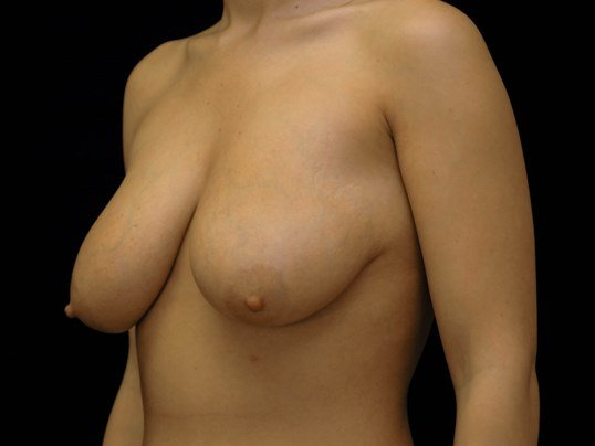 Breast Augmentation with Lift Before Augmentation With Lift