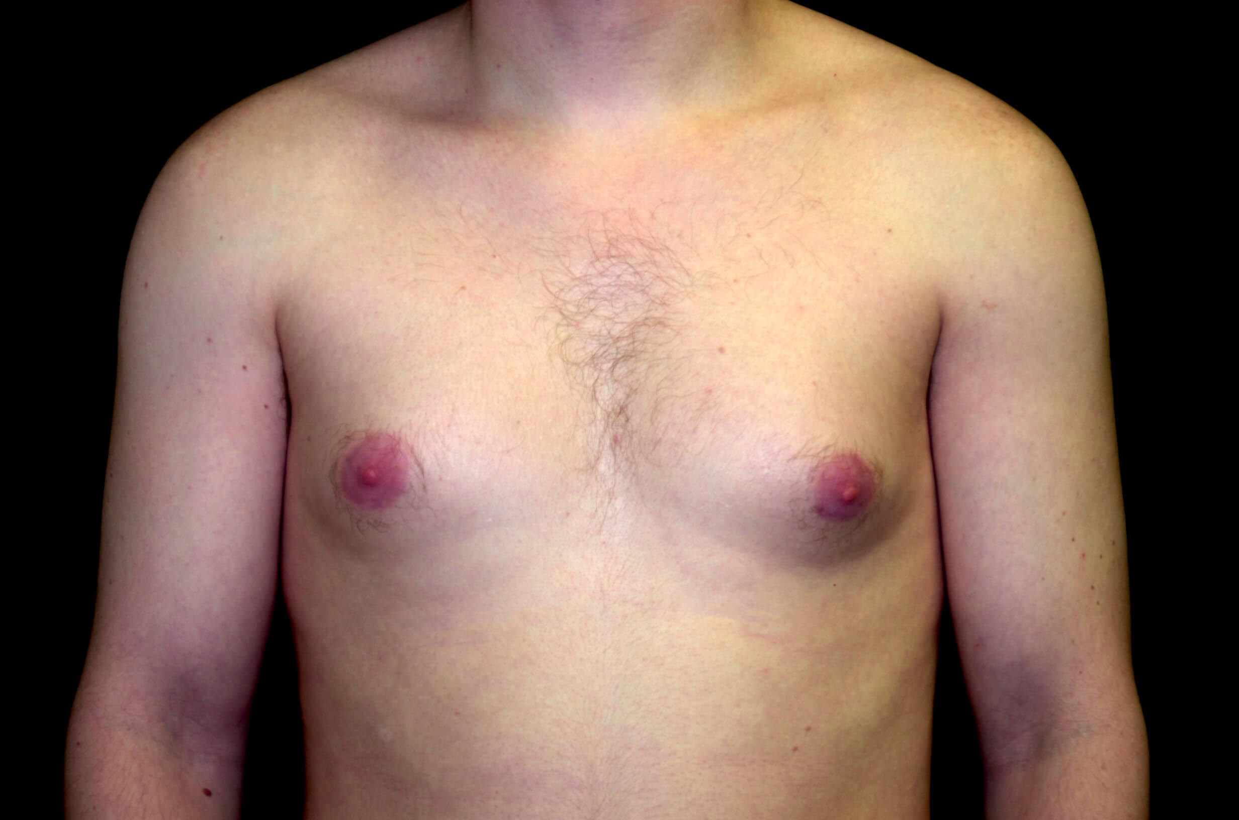 Gynecomastia reduction Before Male Breast Reduction