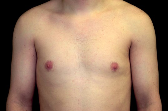 Gynecomastia reduction After Male Breast Reduction