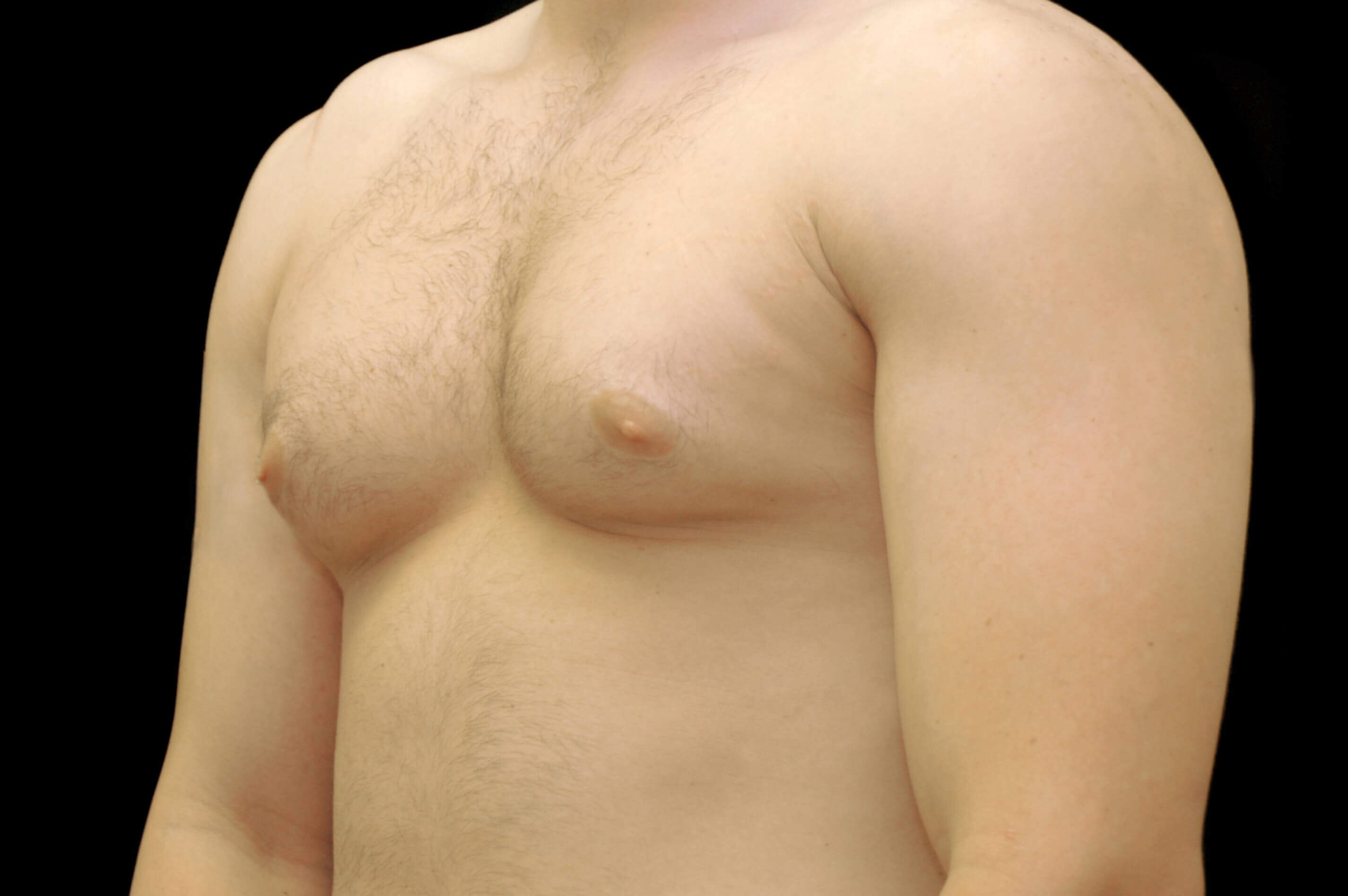 Male Gynecomastia Reduction Before Chest Liposuction