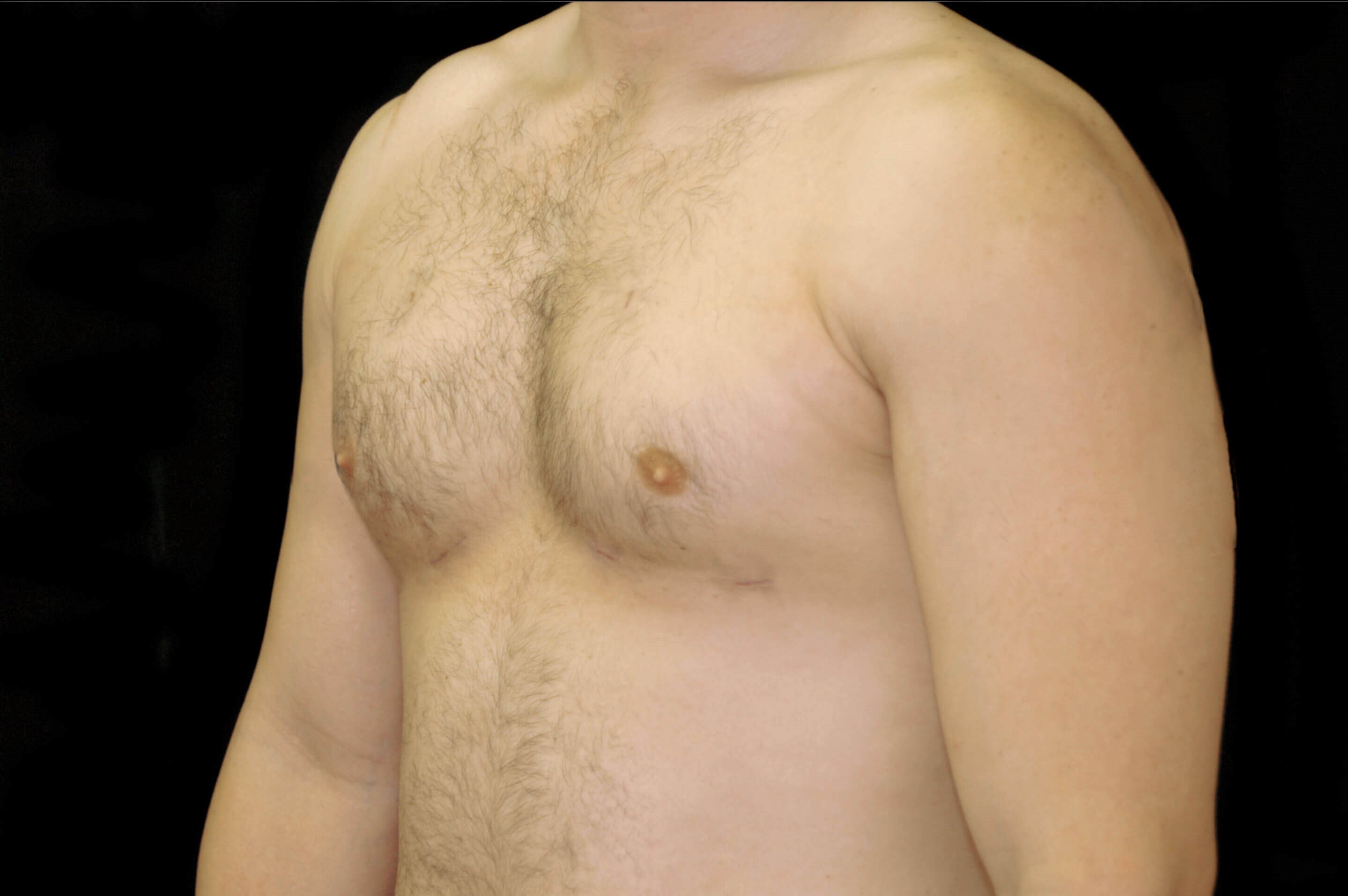 Male Gynecomastia Reduction After Chest Liposuction