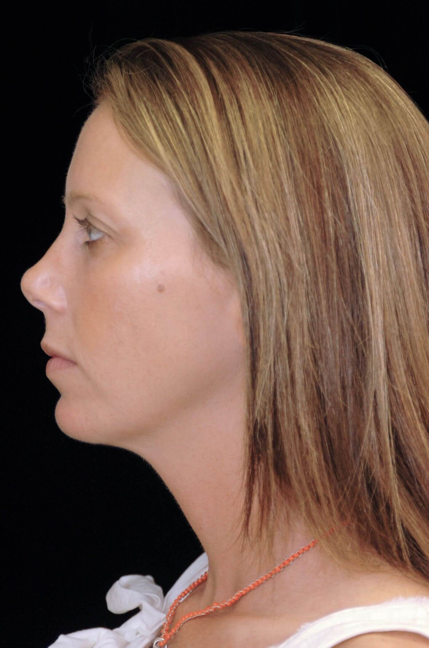 Chin Augmentation With Implant After