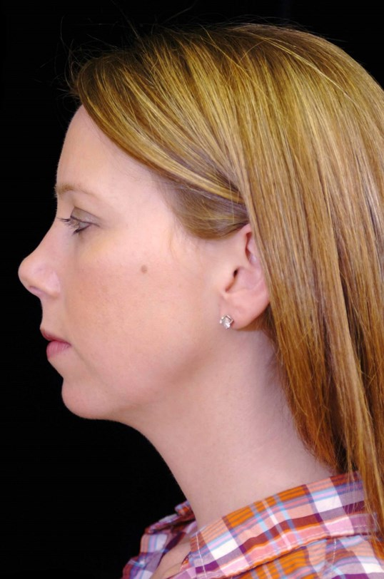 Chin Augmentation With Implant Before