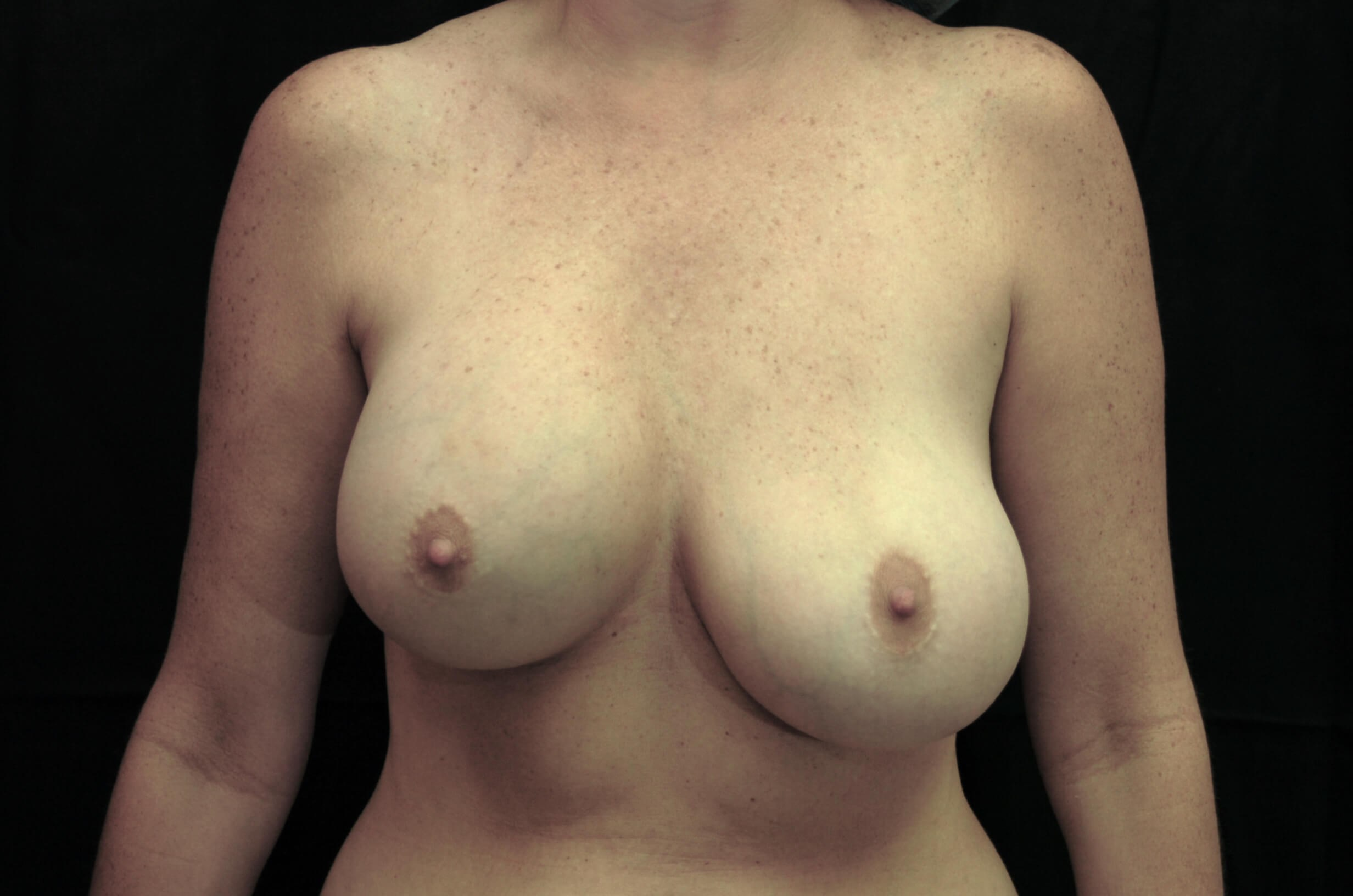 Restoring Breast Symmetry Before-Different Breast Height