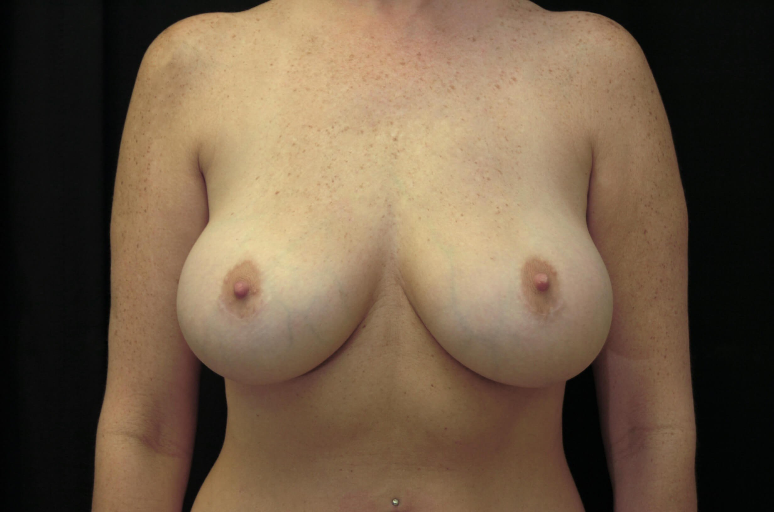 Restoring Breast Symmetry After-Symmetric Breasts