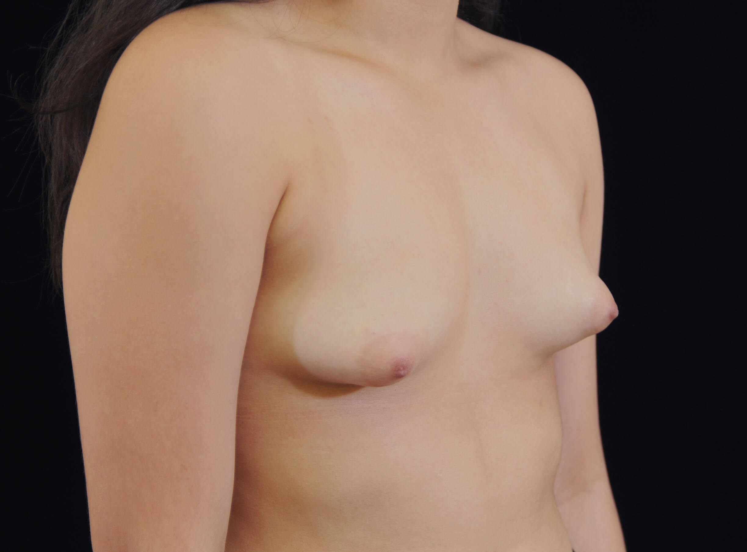 Breast Implants in 19 year old Before-Constricted Breasts