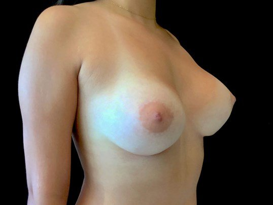 Breast Implants in 19 year old After-Contriction Released
