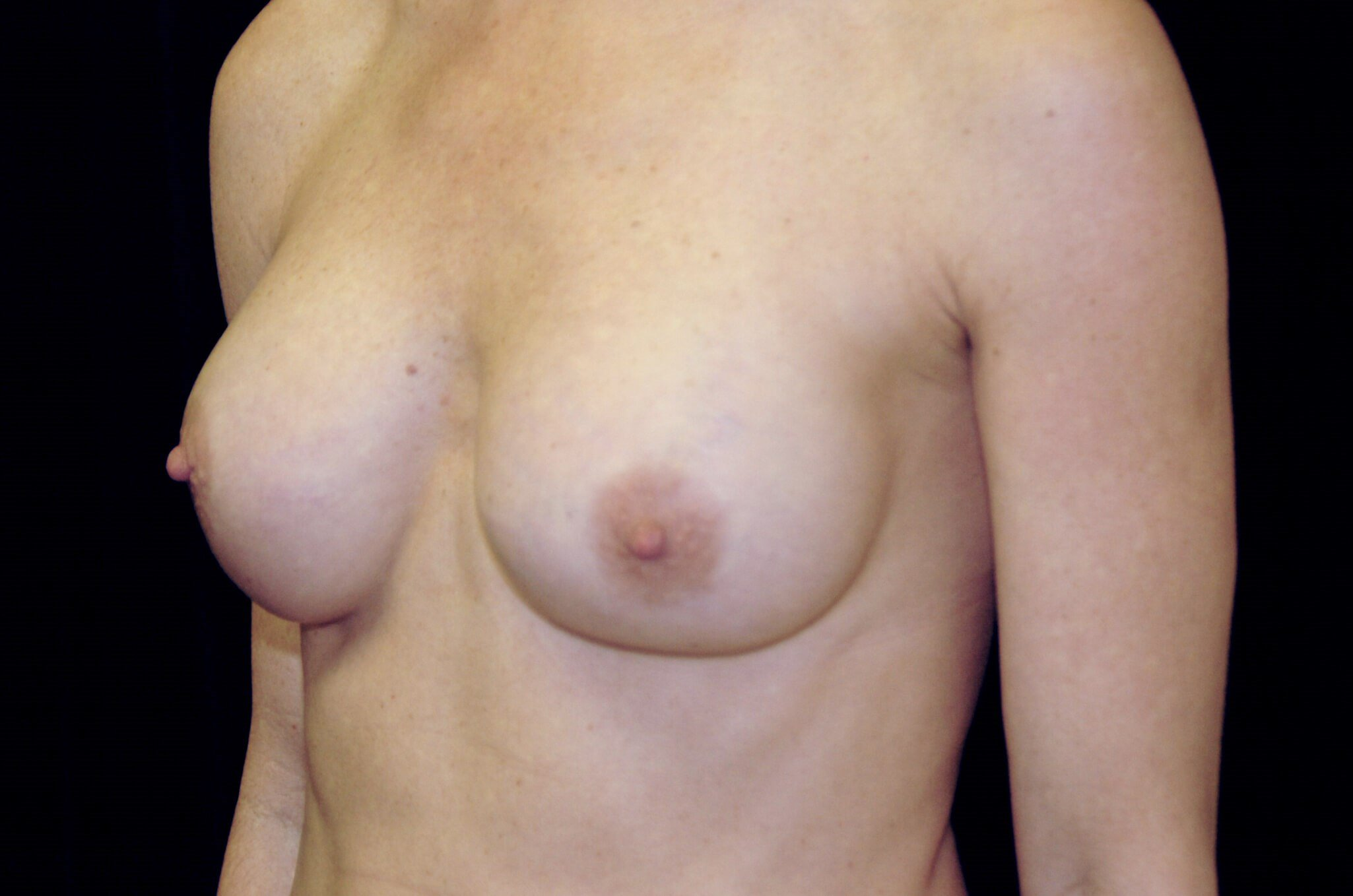 Breast Implant Malposition Before