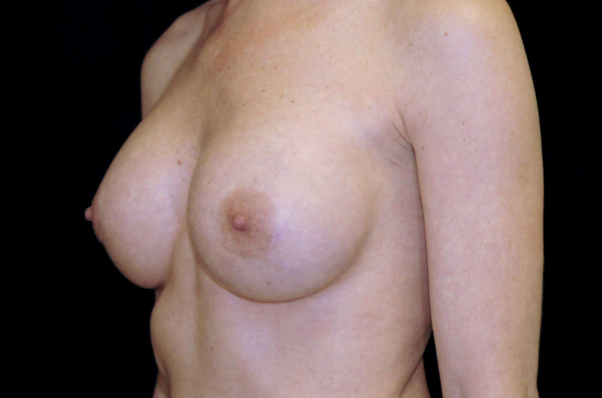 Breast Implant Malposition After