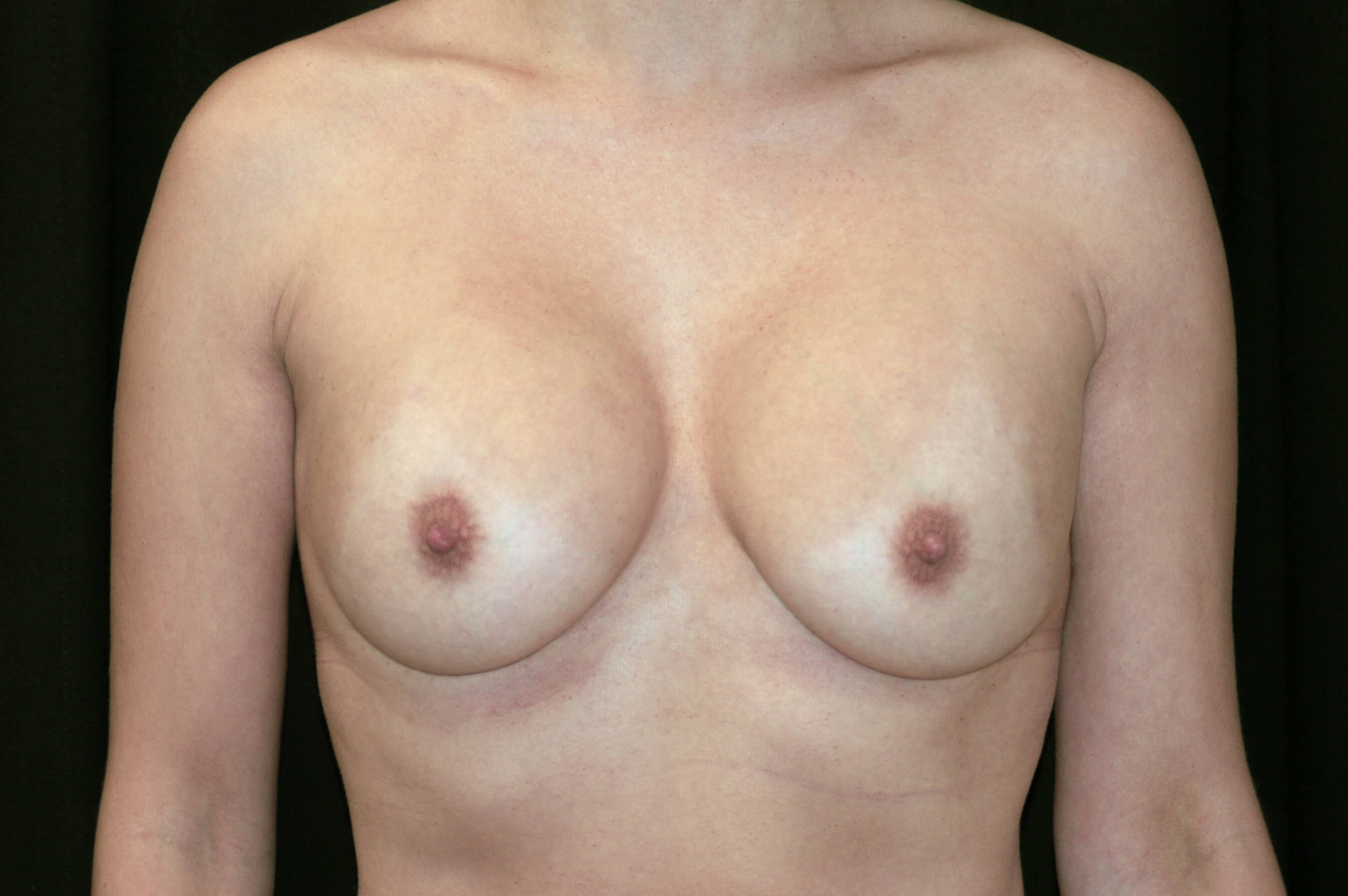 Replacement of Breast Implants Before