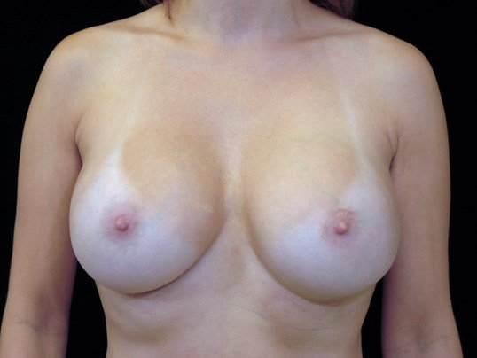 Replacement of Breast Implants After
