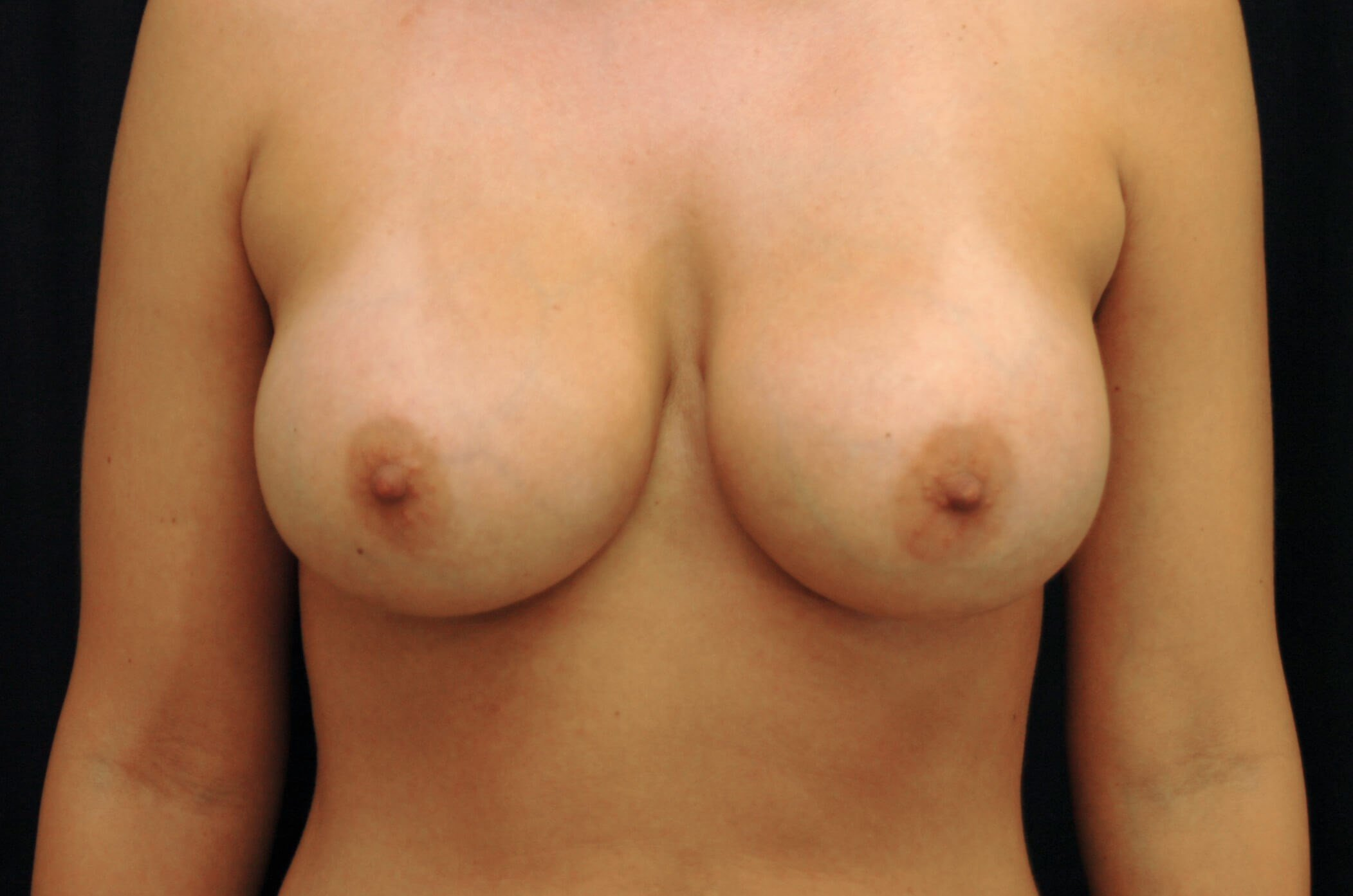 Breast Revision Surgery After