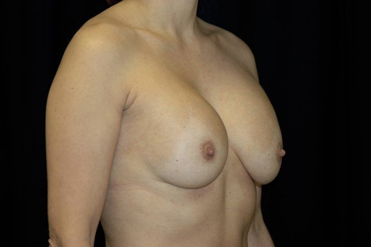 Breast Augmentation Revision Before Augmentation Revision