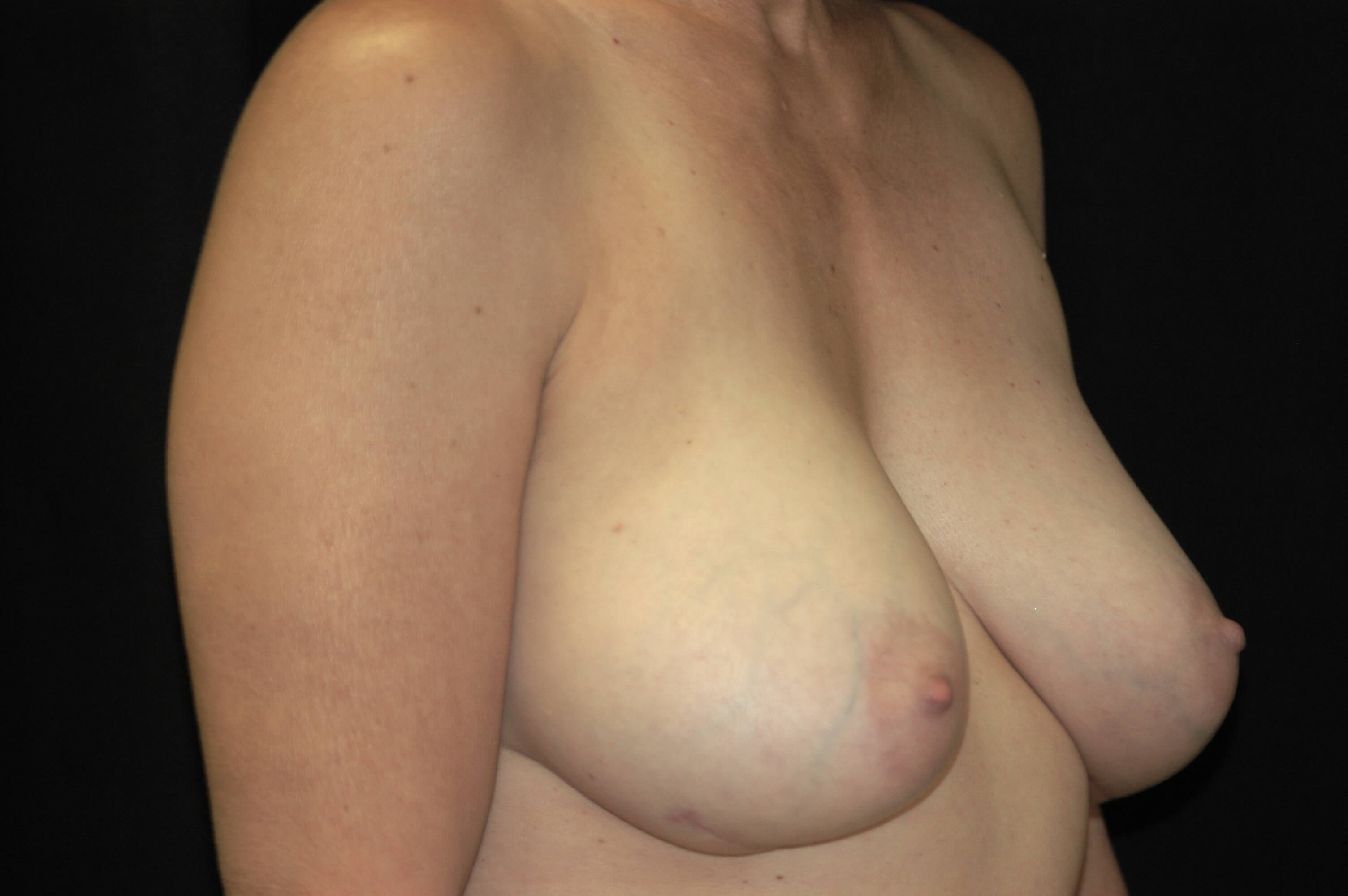 """Snoopy Boob"" Breast Revision After"