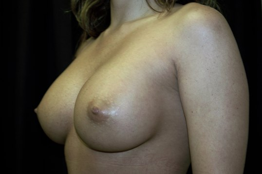 Breast Augmentation Revision After Augmentation Revision
