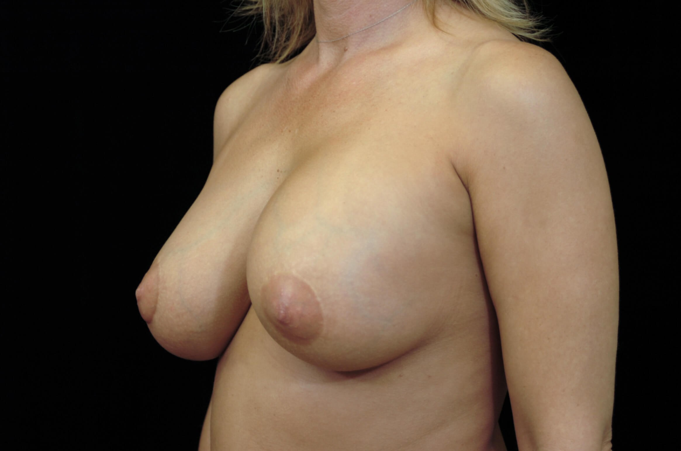 Breast Augmentation Revision Before Breast Implant Revision