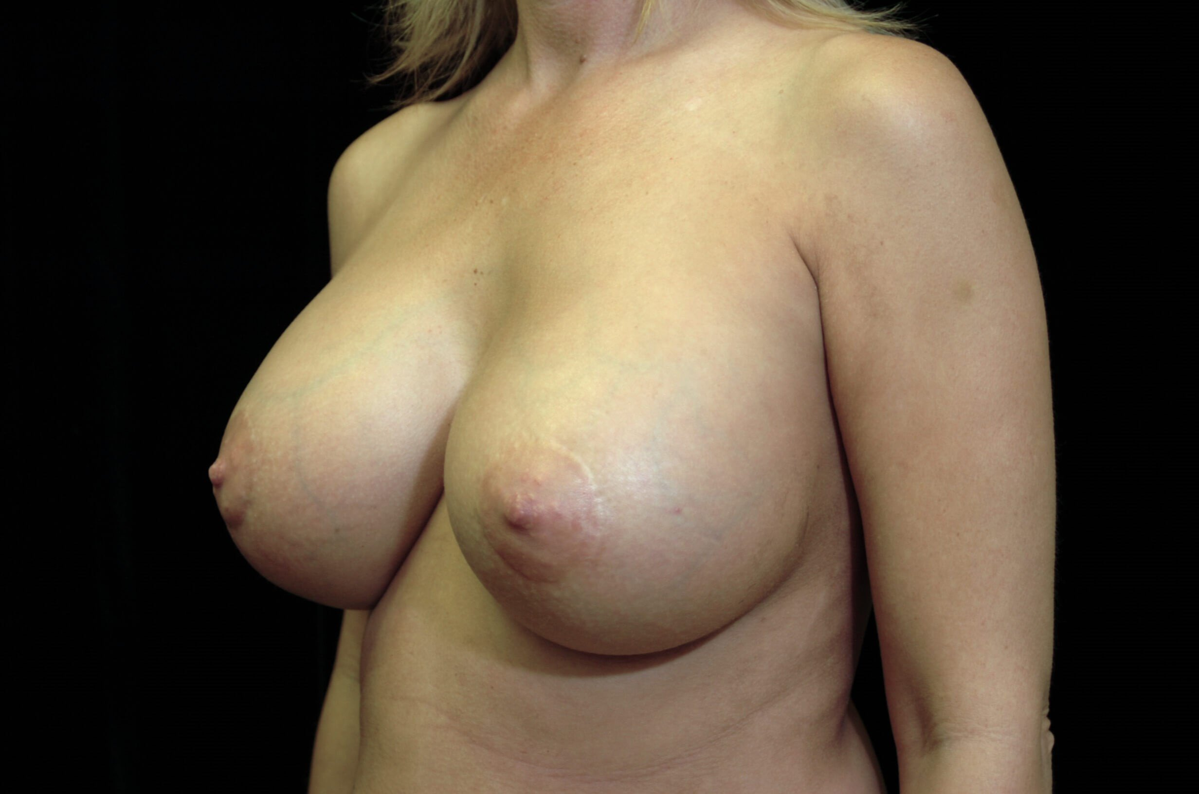 Breast Augmentation Revision After Breast Implant Revision
