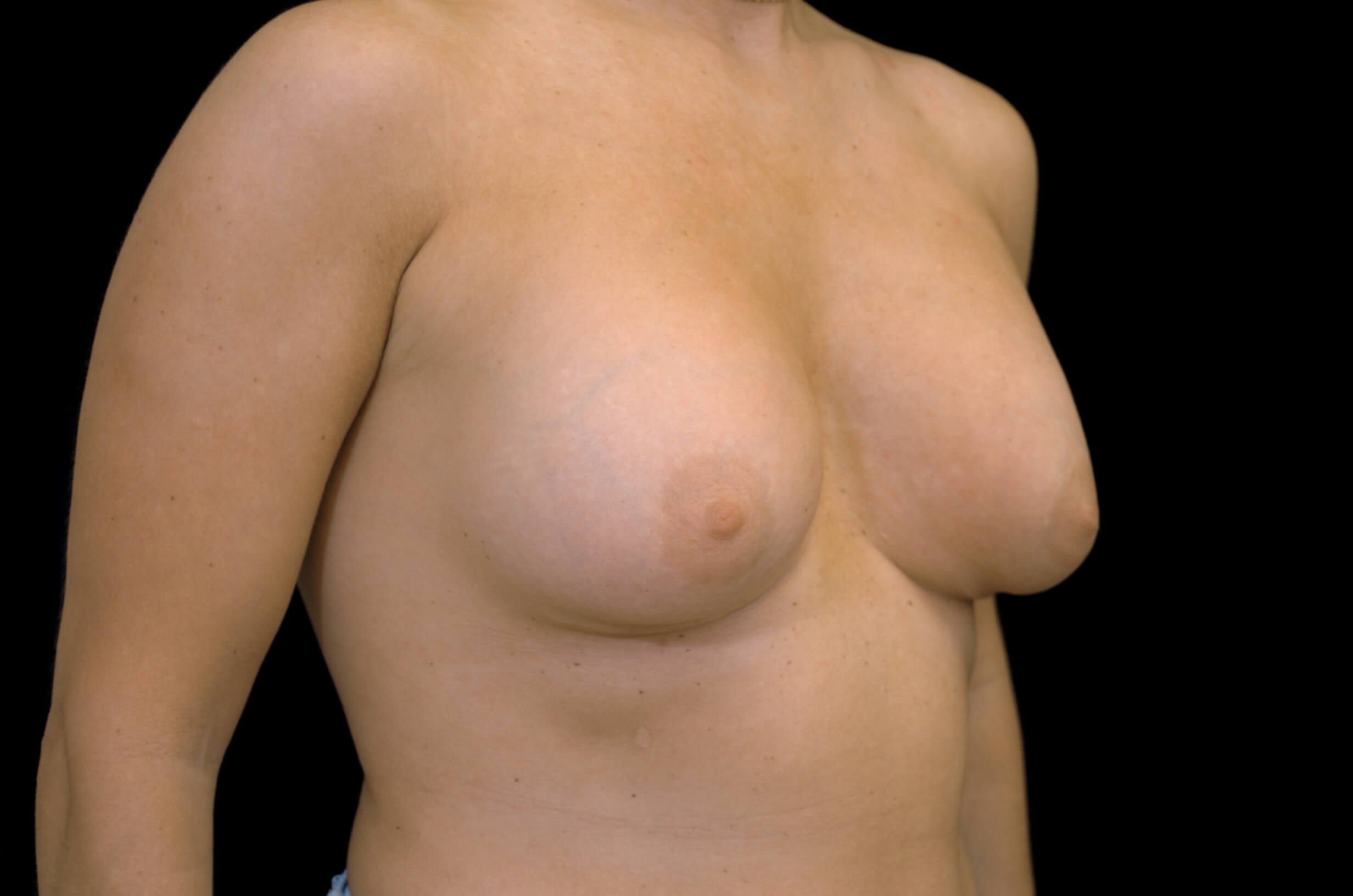 Breast Revision Surgery Before