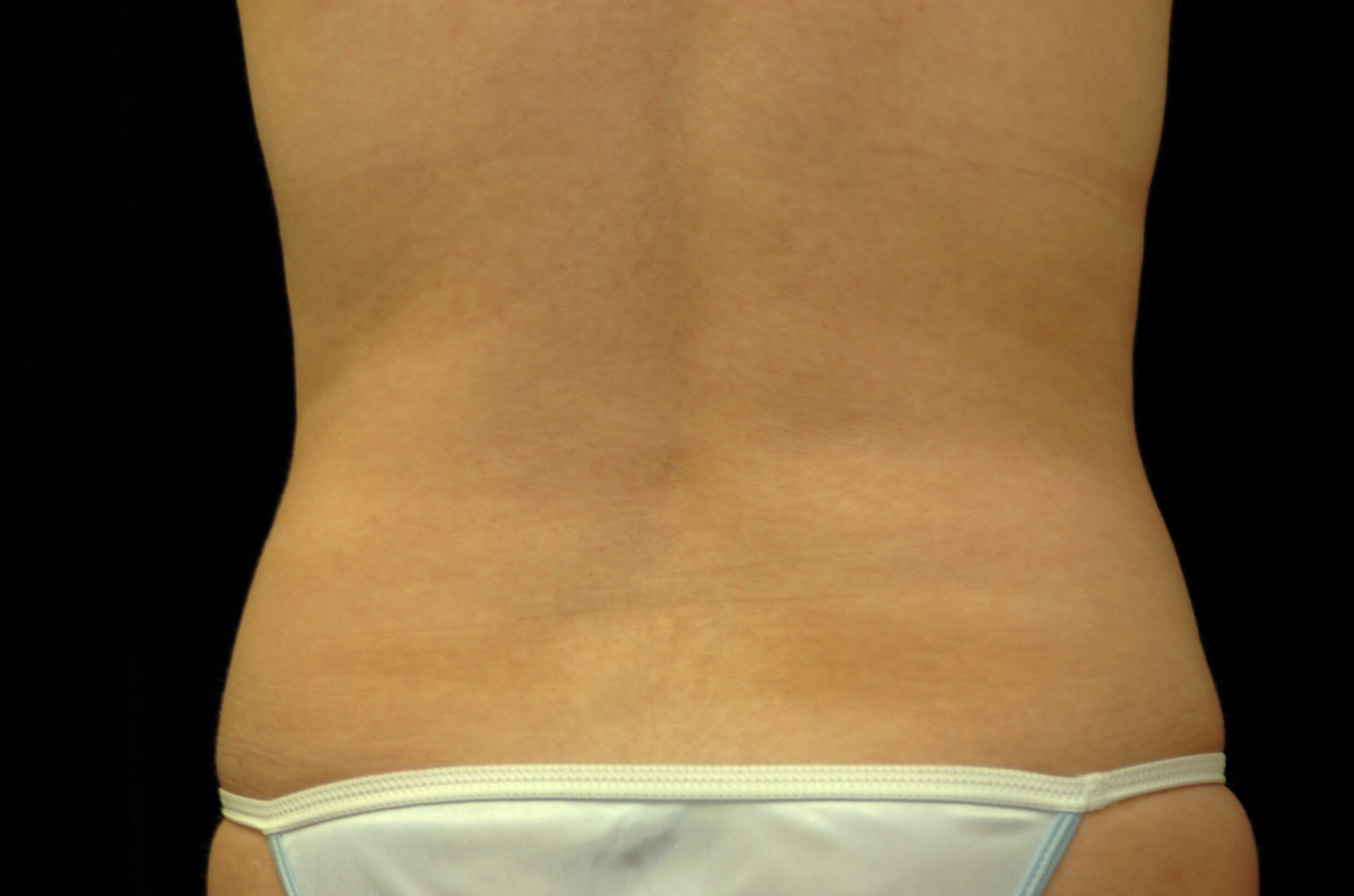 Liposuction Abdomen/Flanks Before