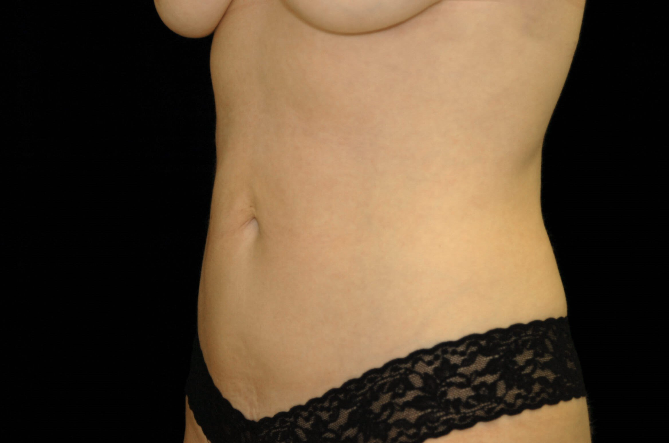 Liposuction Abdomen/Flanks After
