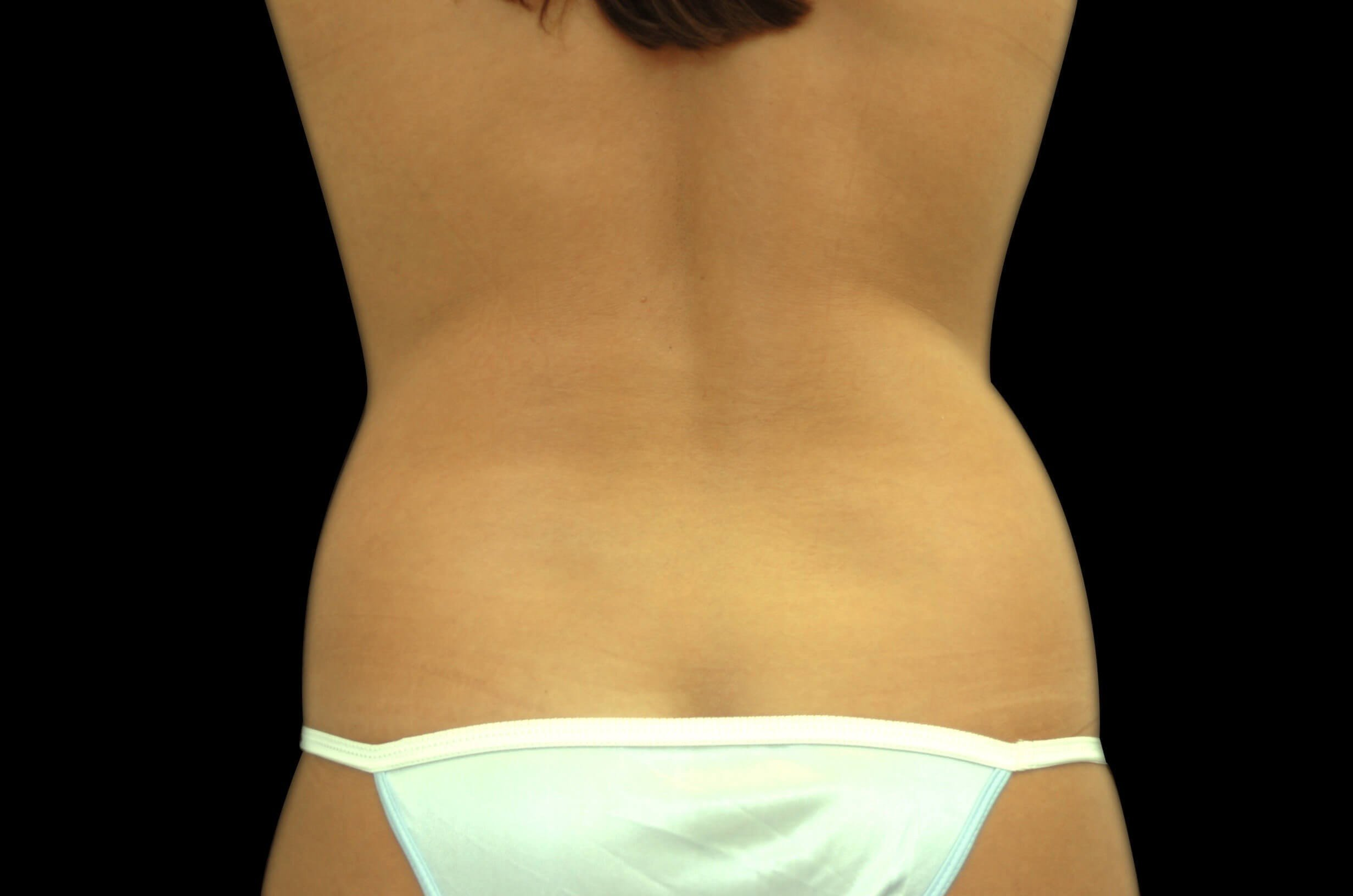 Liposuction Flanks and Back Before