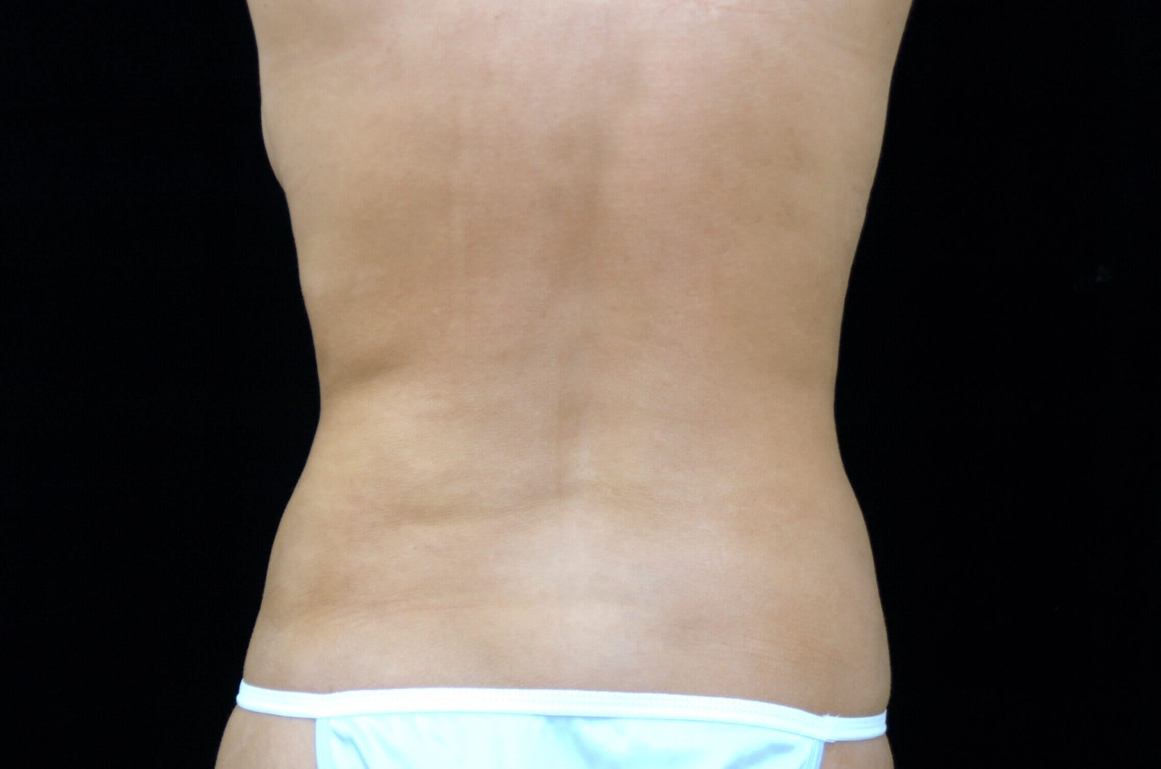 Liposuction Flanks and Back After