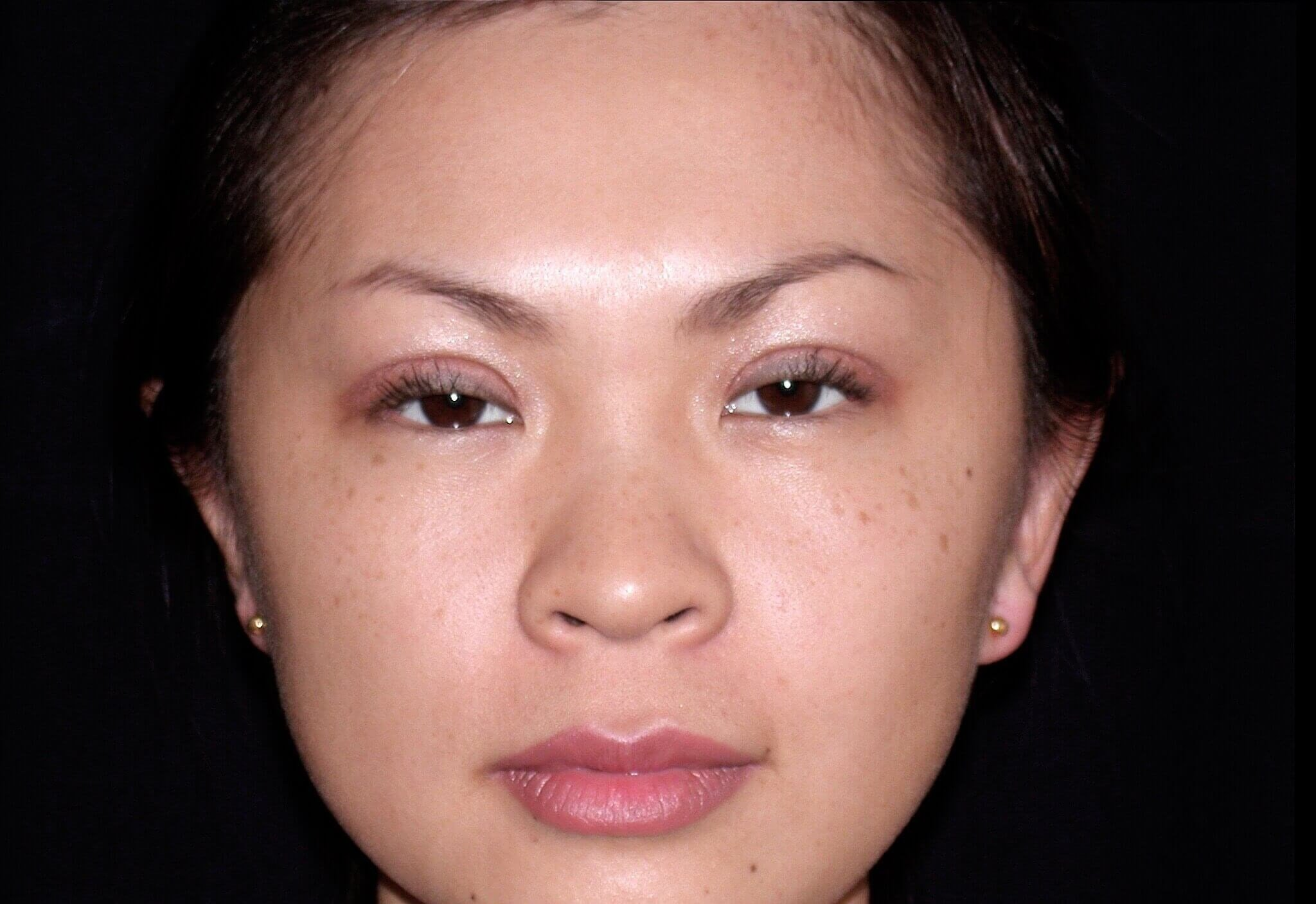 Otoplasty After