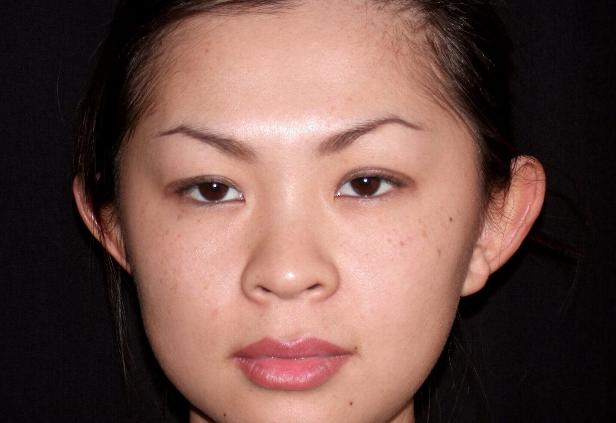 Otoplasty Before