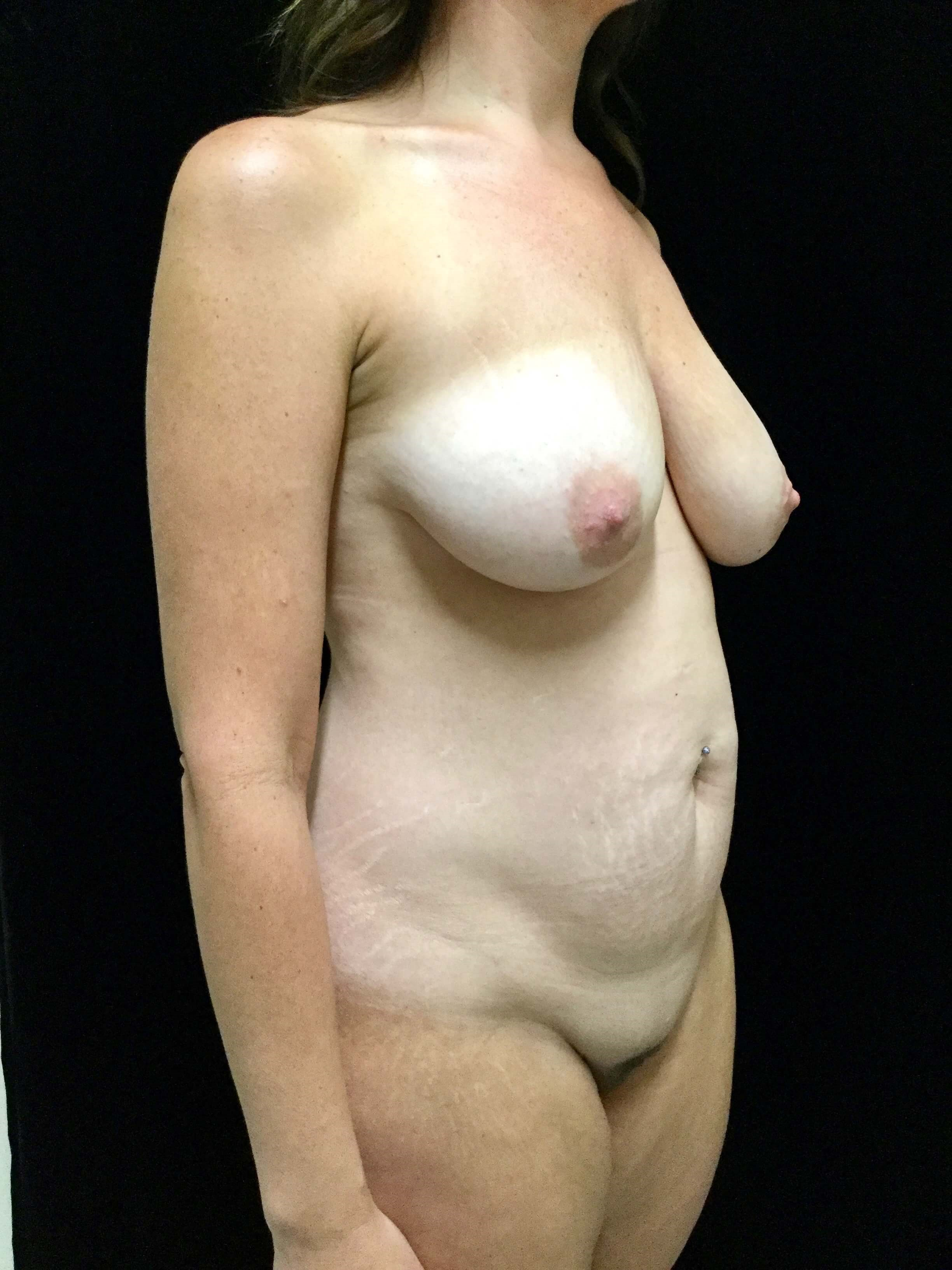 Tummy Tuck/Liposuction Before