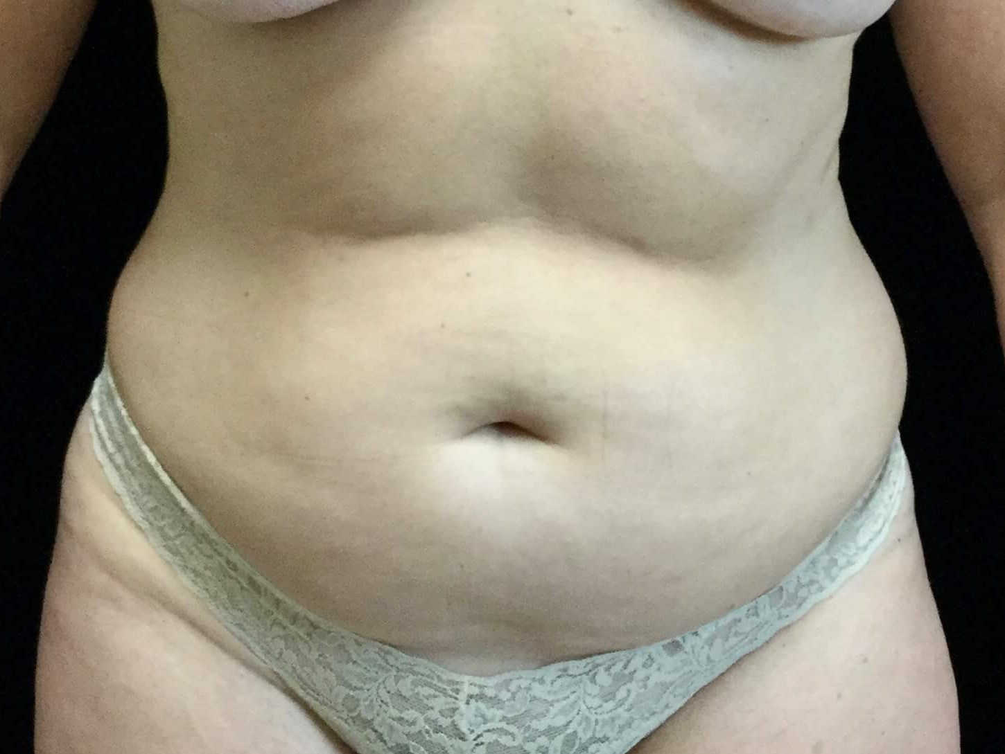 Tummy Tuck and Liposuction Before Tummy Tuck and Lipo