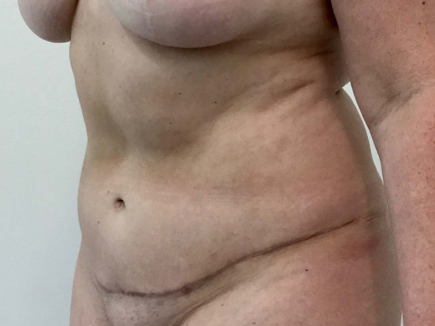 Tummy Tuck and Liposuction After Tummy Tuck and Lipo