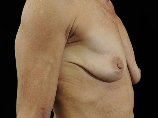 Breast Augmentation Before Breast Implants