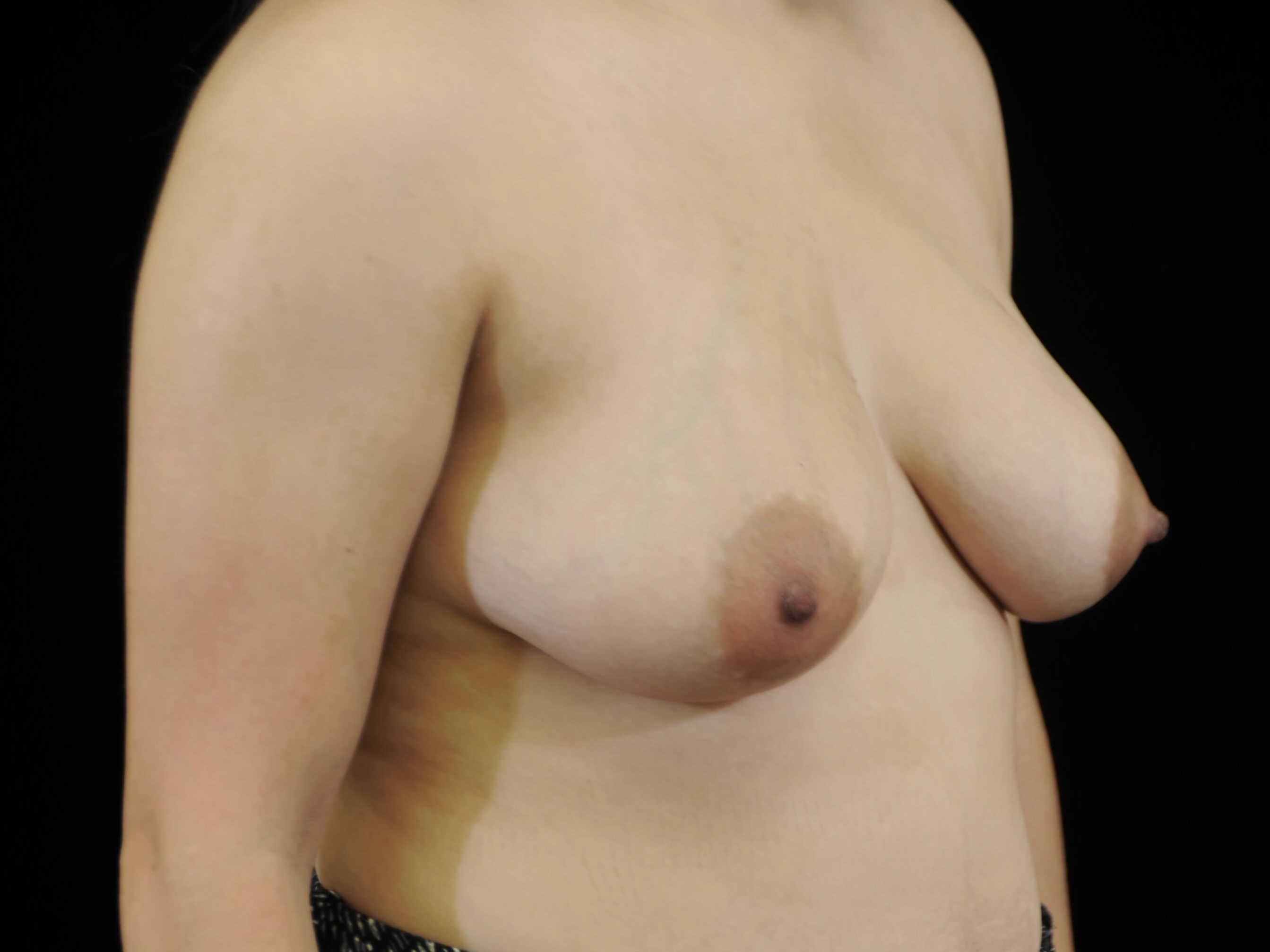 Breast Augmentation with Lift Before Augmentation and Lift