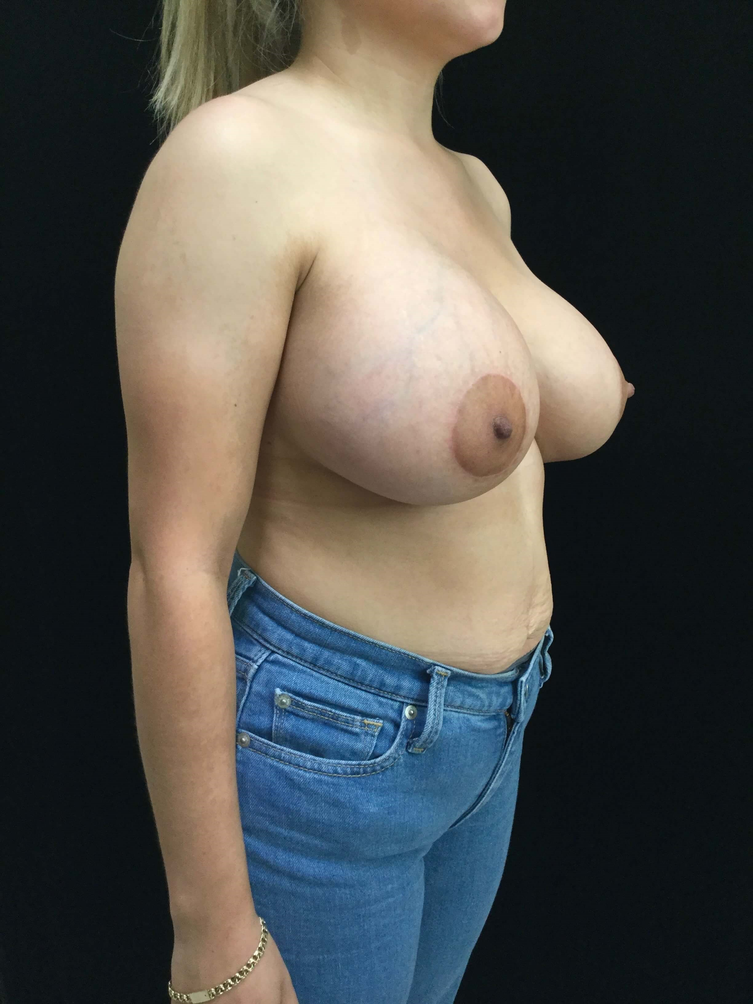 Breast Augmentation with Lift After Augmentation and Lift