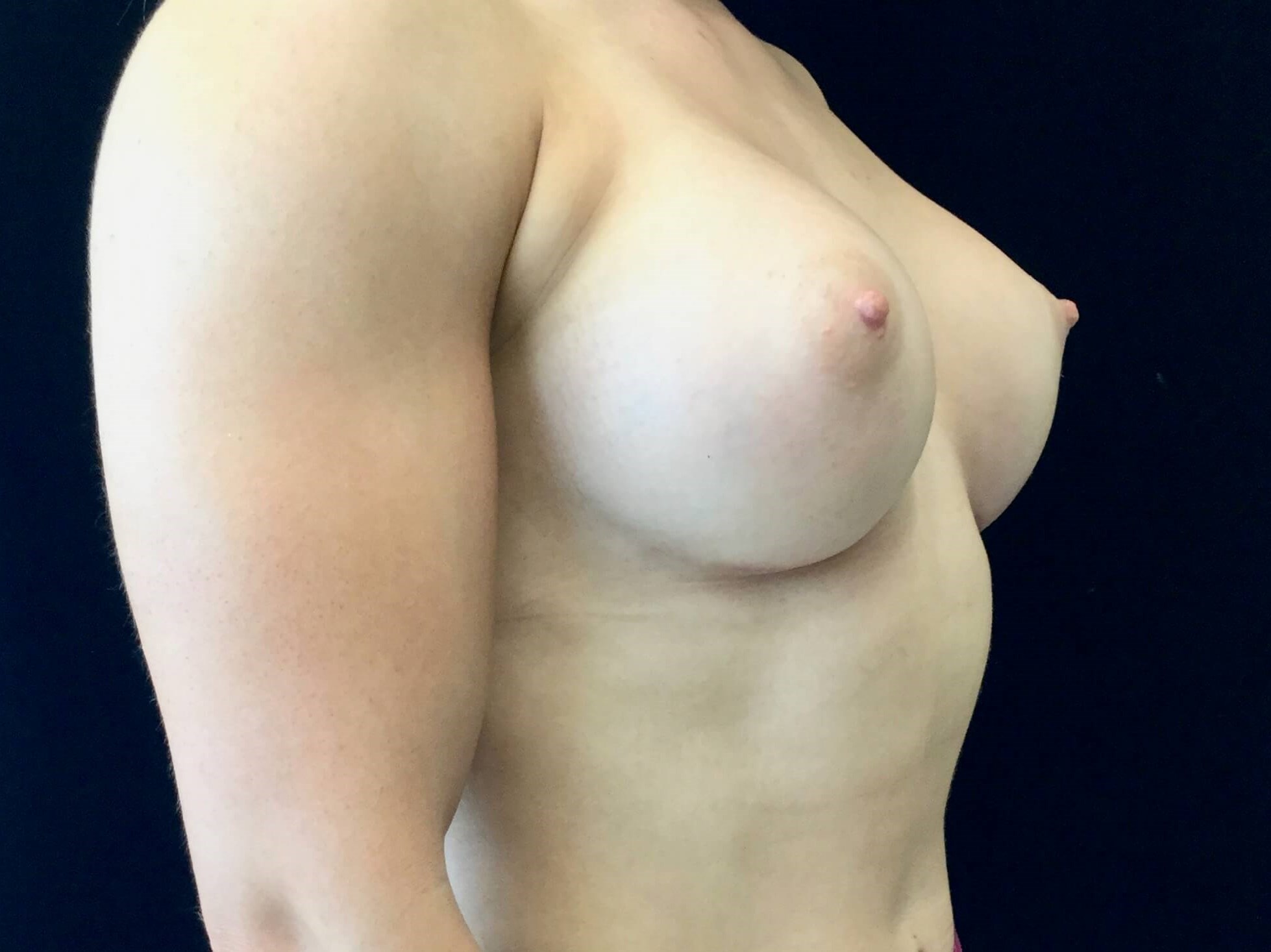 Breast Augmentation After Gummy Bear Implants