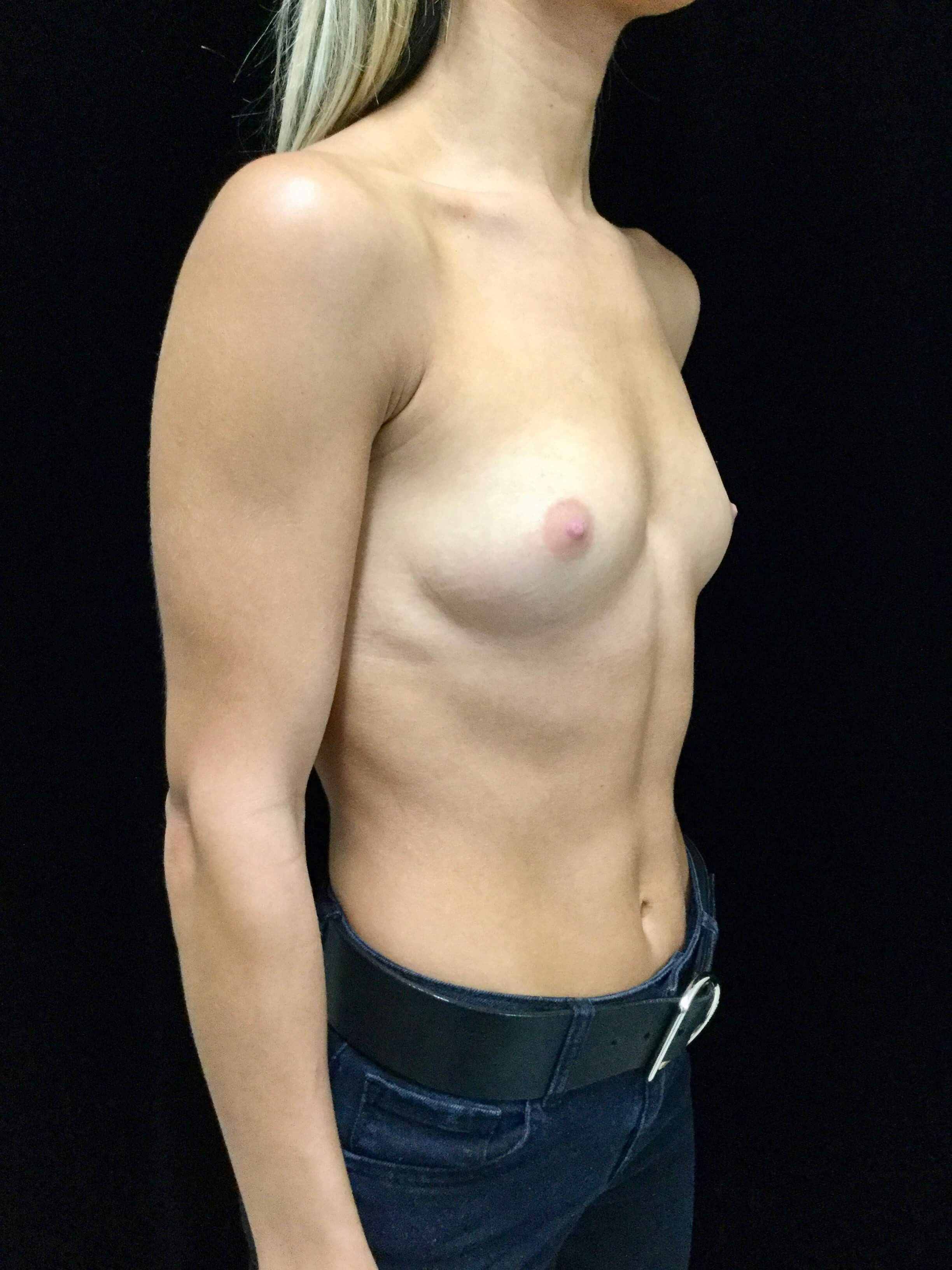 Breast Augmentation Before Breast Augmentation