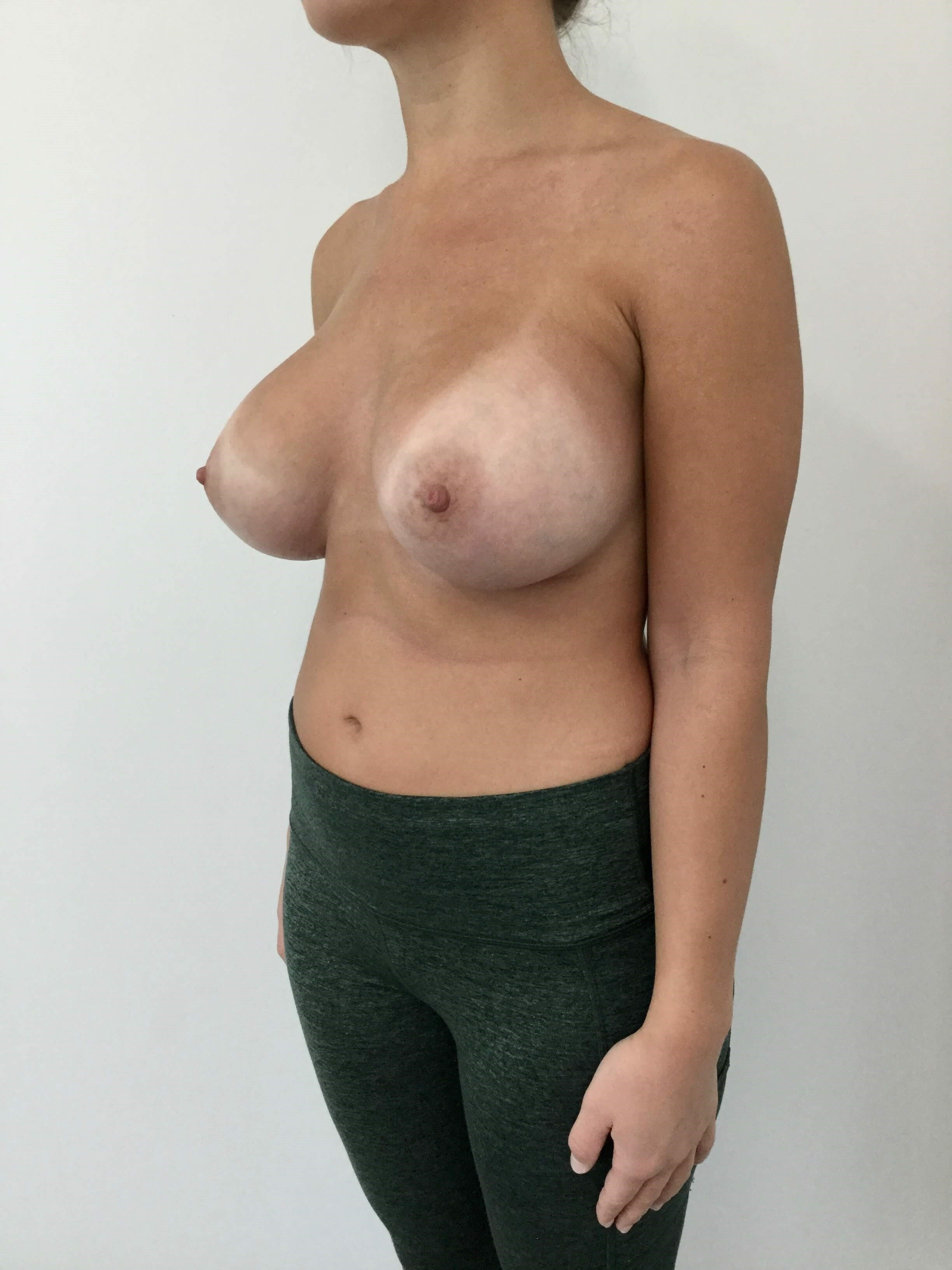 Breast Augmentation After Breast Augmentation