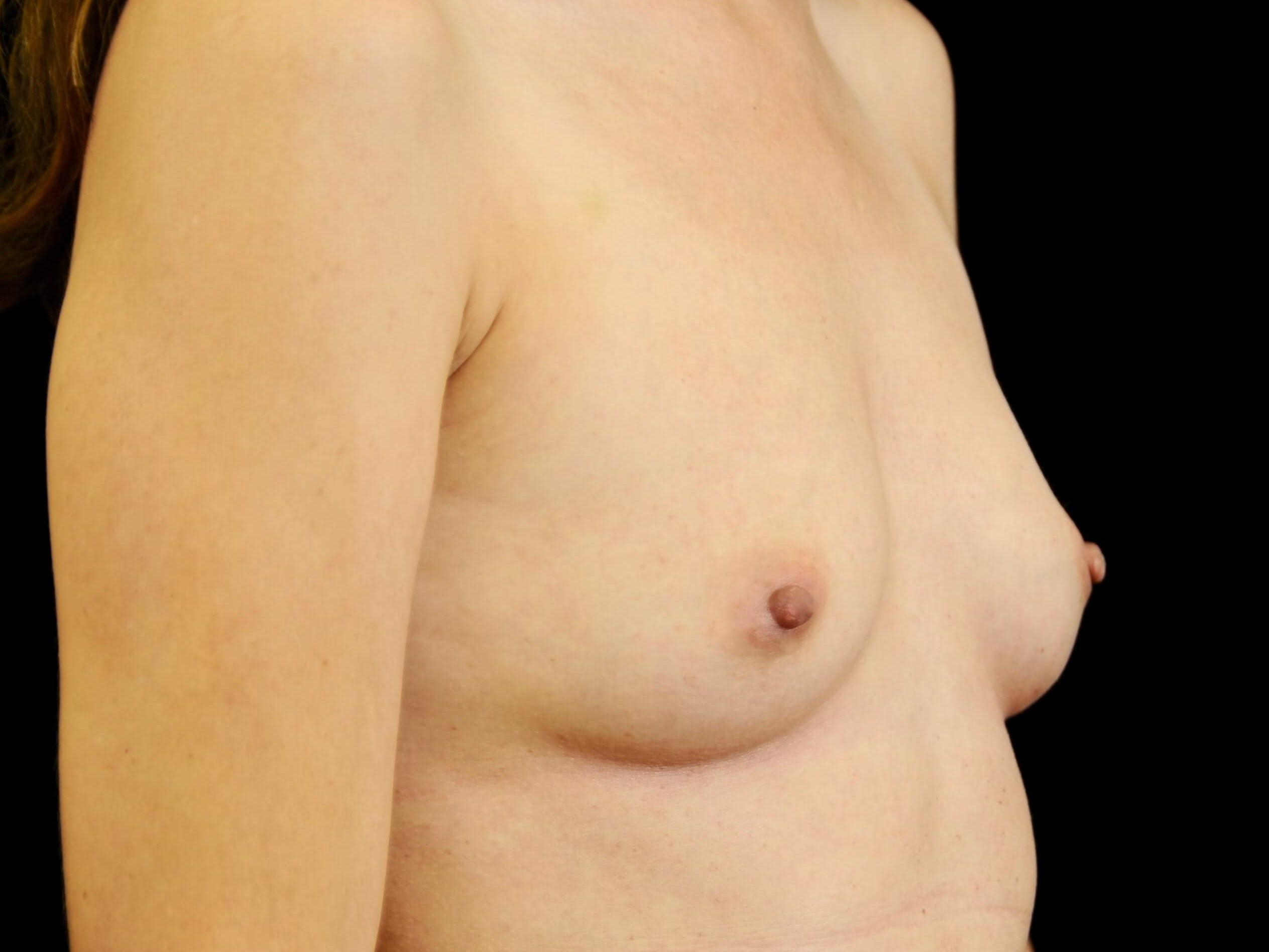 Breast Augmentation Before Silicone Gel Implants
