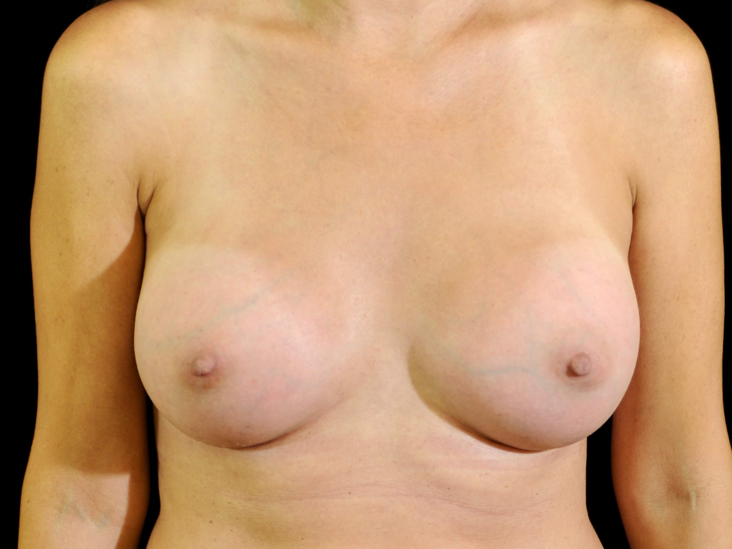 Breast Augmentation After Silicone Gel Implants