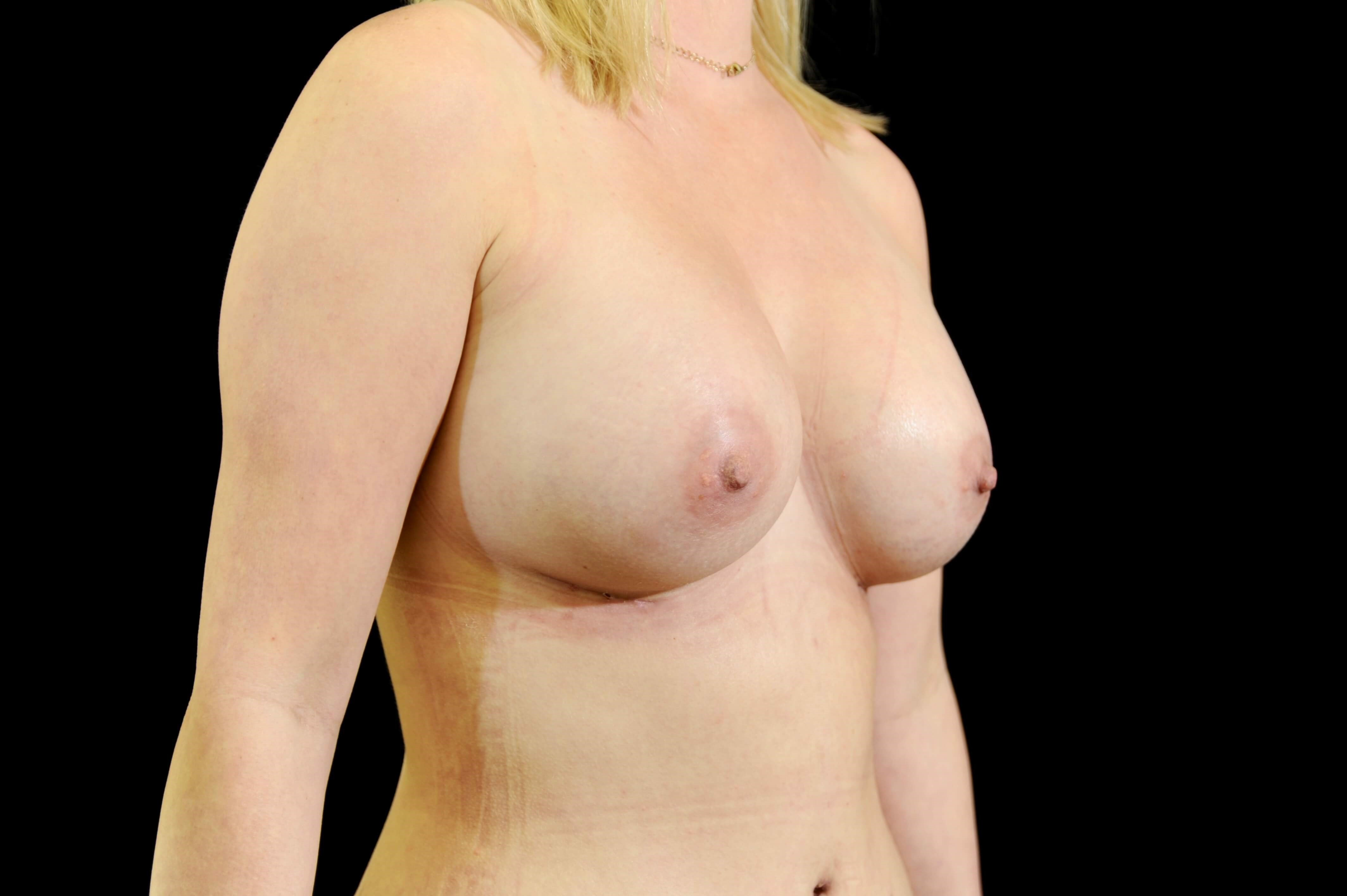 Breast Augmentation After Breast Implants
