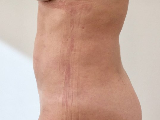 Liposuction Revision After