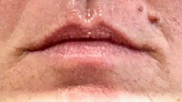 Lip Augmentation With Juvederm Before Juvederm Lip Filler