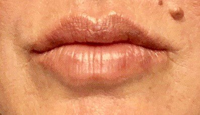 Lip Augmentation With Juvederm After Juvederm Lip Filler