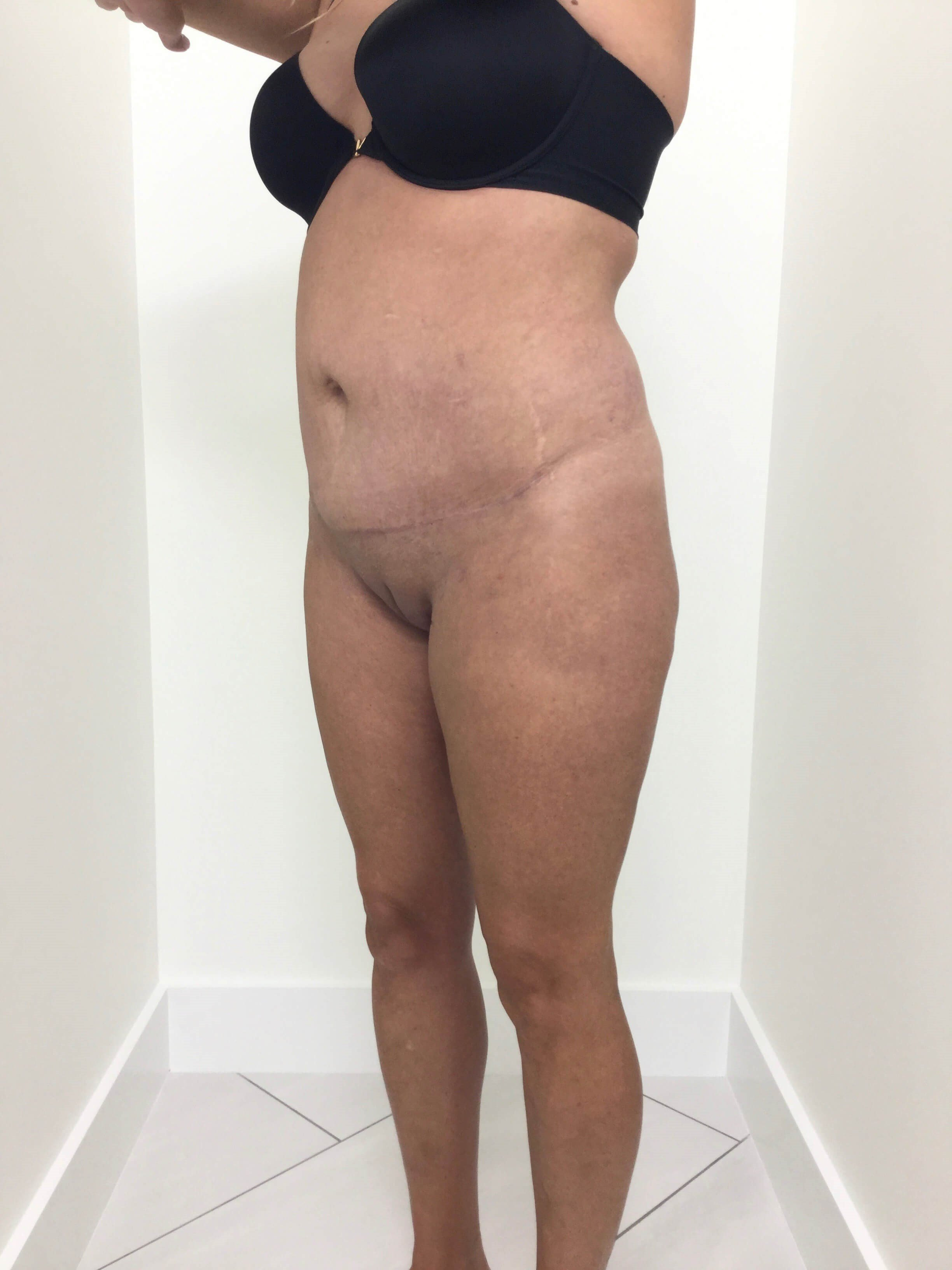Liposuction/Mini Tummy Tuck After