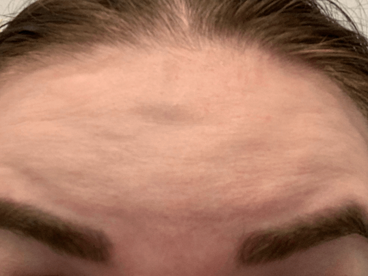 Botox Forehead Before